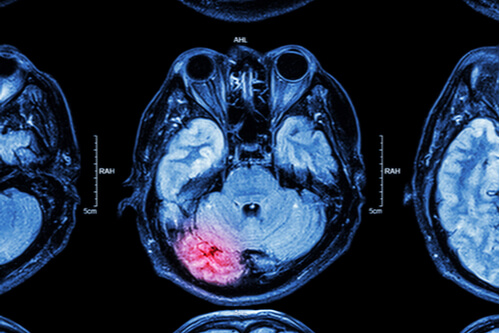 Auto Accidents and Traumatic Brain Injuries